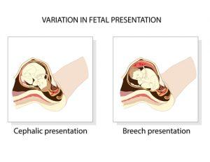 breech birth