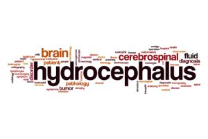 hydrocephalus birth injury attorney