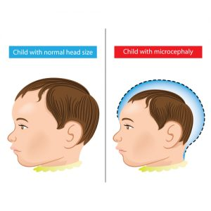 Microcephaly neurodevelopmental disorder