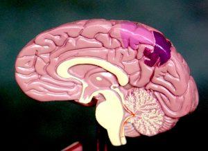 Brain Injury Lawyer Thurswell Law